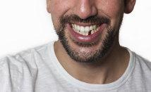 Missing <span>Teeth</span>